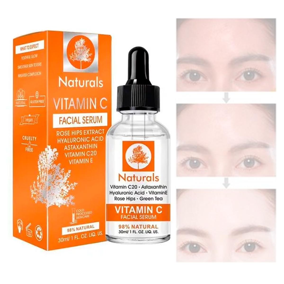 Serum Vitamina C Naturals Remueve Manchas Y Pecas Aclara